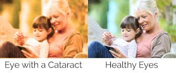 Vision with and without Cataracts Example