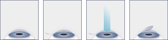 Chart showing the steps of the lasik process